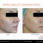 results-before-after-venus-viva