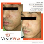 results-before-after-venus-viva-acne-scars