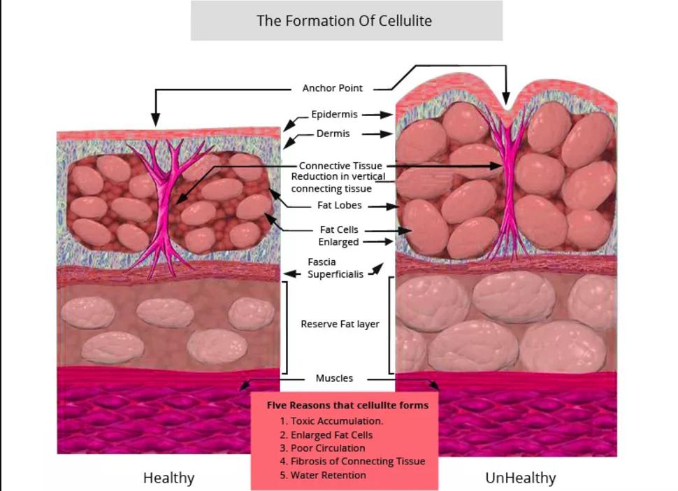celulit-nirvana