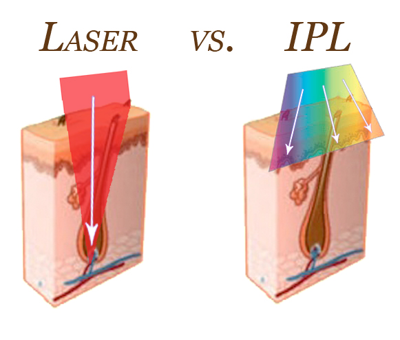 Laser-vs-IPL-article-image1