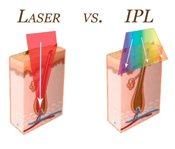 Laser-vs-IPL-article-image1