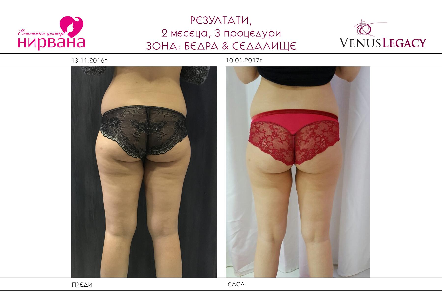 results-venus-legacy-nirvana-sofia