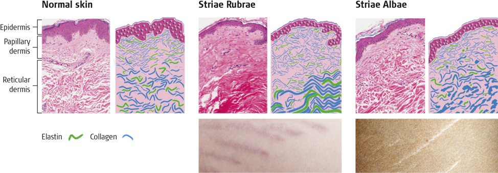 histological-skin-comparison