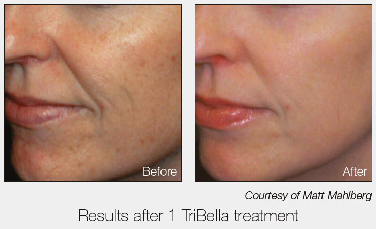 tribella-results